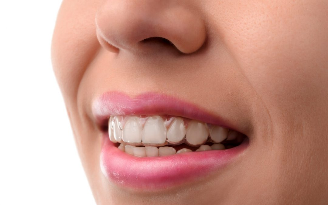 Invisalign Treatment Time and Cost