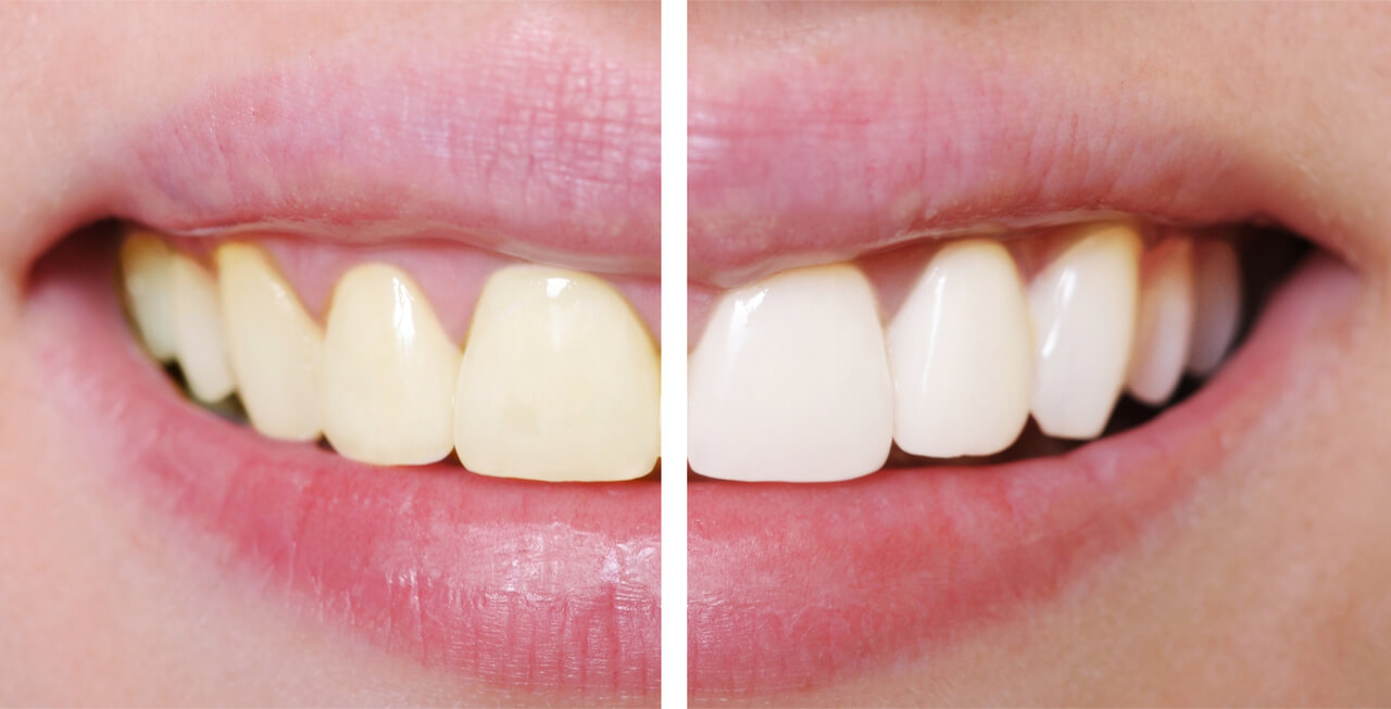 What Is The Average Cost Of Teeth Whitening Services Newjerseyortho
