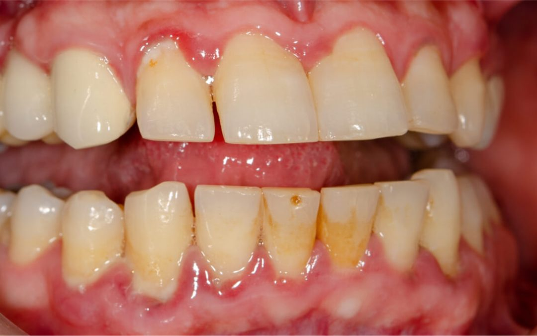 Gingivitis Stages and Care