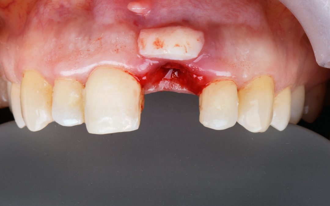 Facts about infection after gum graft infection
