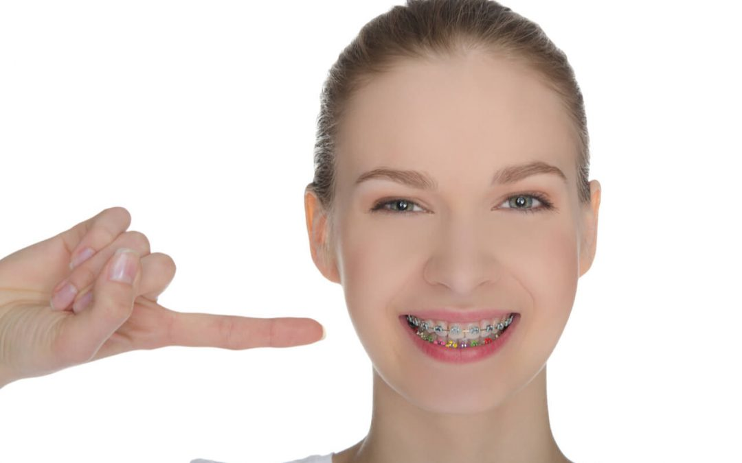 How Braces Work To Improve Teeth Appearance?