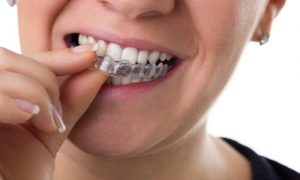 invisalign removable orthodontic appliances