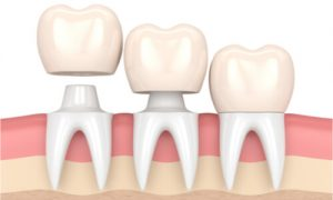 illustration of tooth crowns