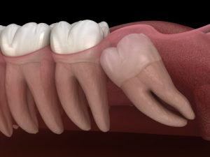 impacted wisdom tooth complication