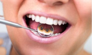 invisible braces teeth alignment options